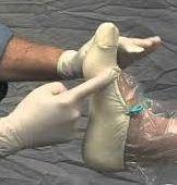 fiberglass-slipper-sock-casting-edited